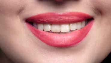 تزریق ژل :از بین بردن خط لبخند با این روش ها