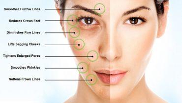 مزوتراپی چیست و چه نقشی در زیبایی پوست دارد ؟