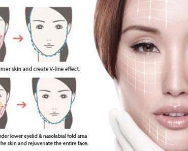 قیمت کوکتل لیفت صورت : ده روش برای درمان افتادگی پوست صورت