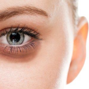 کوکتل درماهیل : درمان پف زیر چشم با ۱۲ توصیه ساده اما موثر